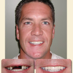 Male patient with before and after view of mouth/teeth and full face