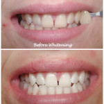 Mouth/teeth before and after whitening treatment
