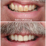 Mouth/teeth before and after whitening treatment with mustache