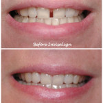Mouth/teeth before and after invisalign treatment