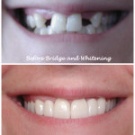 Mouth/teeth before and after bridge and whitening treatment
