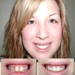 Female patient with before and after view of mouth/teeth and full face