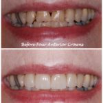 Mouth/teeth before and after four anterior crowns treatment